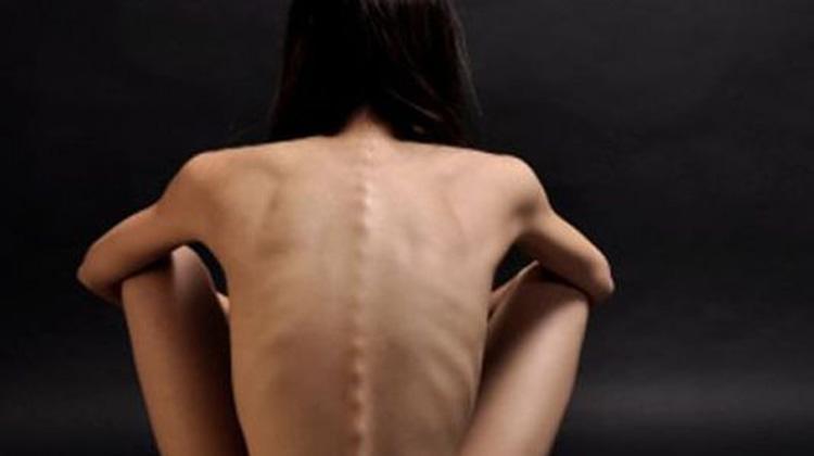 Anorexia nerviosa o Tane restrictivo