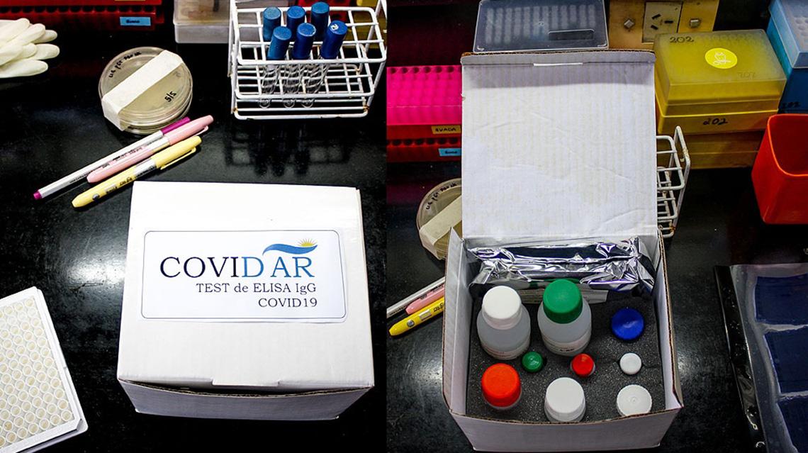 Dos kits que detectan el coronavirus esperan aprobación del Anmat