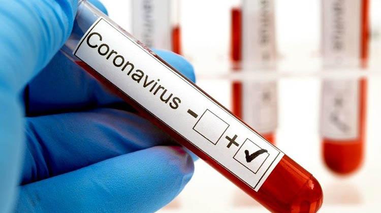 Junín: Seis casos positivos de COVID